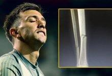 Photo of Fernando Muslera ve futbolcularda yaşanılan talihsiz sakatlık üzerine
